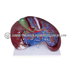AH937 Expansion Model of the Liver Dissection