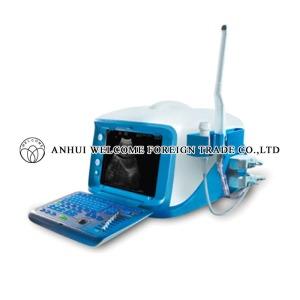 cx6000-digital-ultrasound-scanner